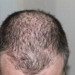hajhullás ellen, kopaszodás, hajritkulás