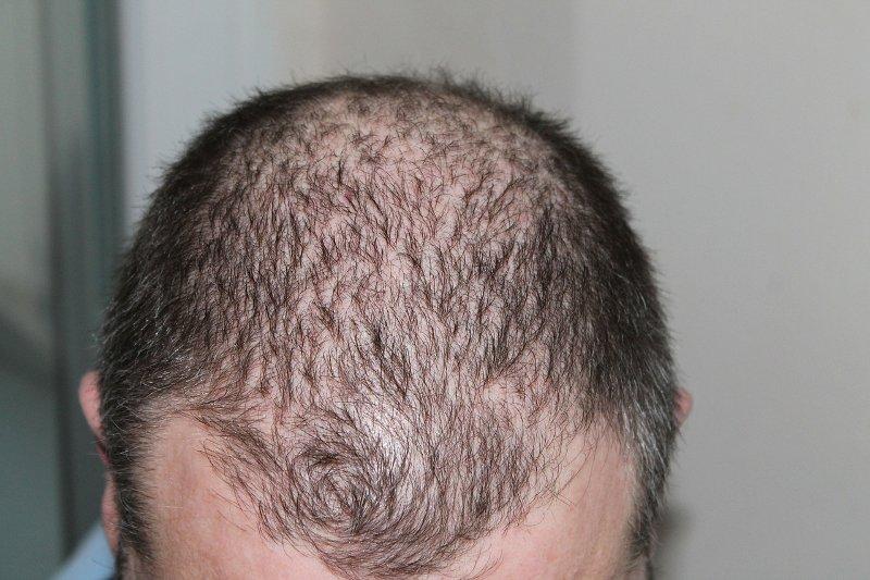 5 tipp hajhullás ellen, az egészséges és dús hajért!